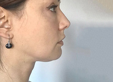 before/afters face yoga transformations that all of us