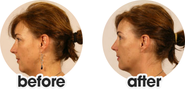 Face Yoga - Before and Afters | Face Yoga Method