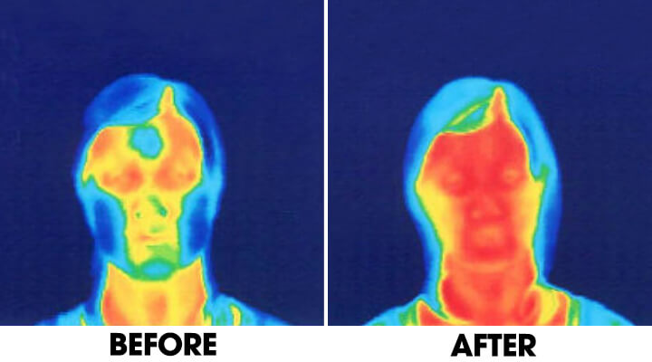 Two photos showing comparison of face blood circulation flow. Before and after face yoga.