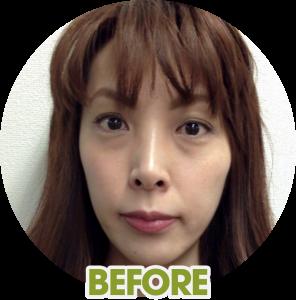 miwa-before