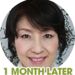 noriko-eye-wrinkles-1-month-later