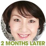 noriko-eye-wrinkles-2-months-later