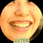 shiho-after-symmetrical-smile