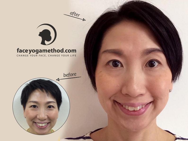 Mina, 42 – Droopy Eyelids