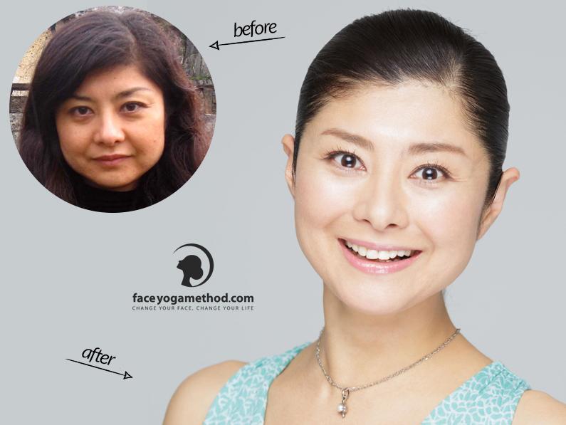 Yoshiko, 42 – Swollen Face