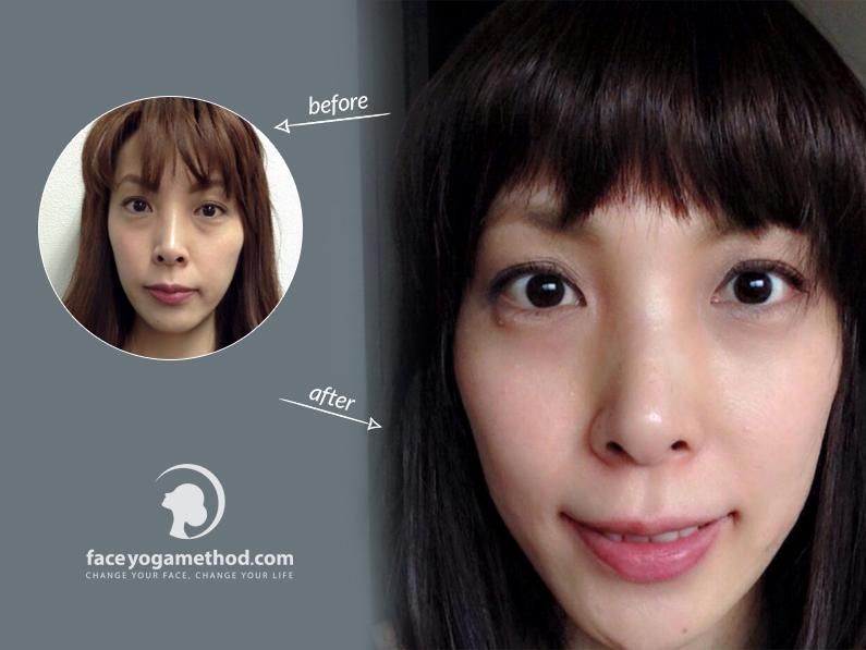 Miwa, 39 – Asymmetrical Eyes