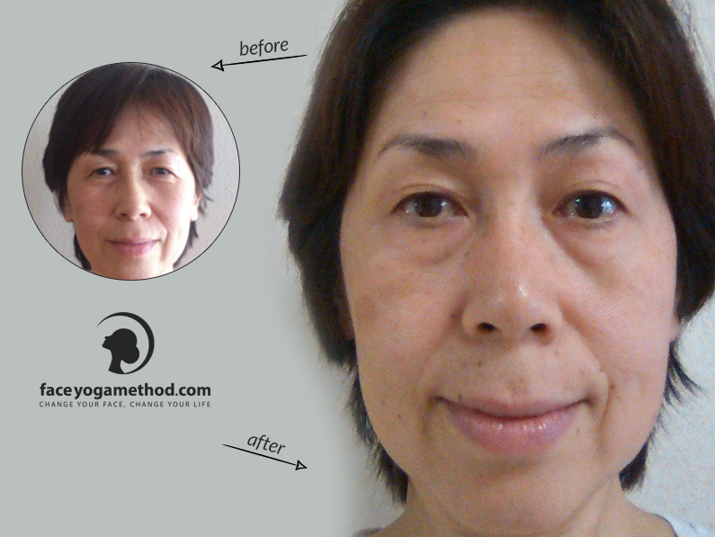 Yasuyo, 54 – Droopy Eyelids