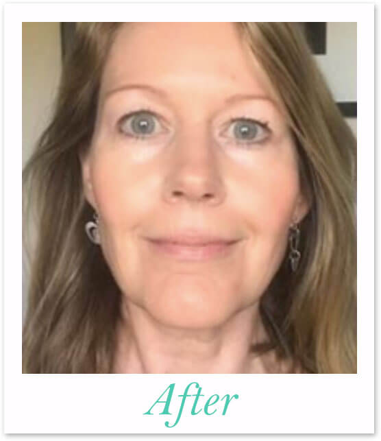 Catherine's Photo After Participating in the Face Toning Bootcamp - an after photo of a Face Yogi.