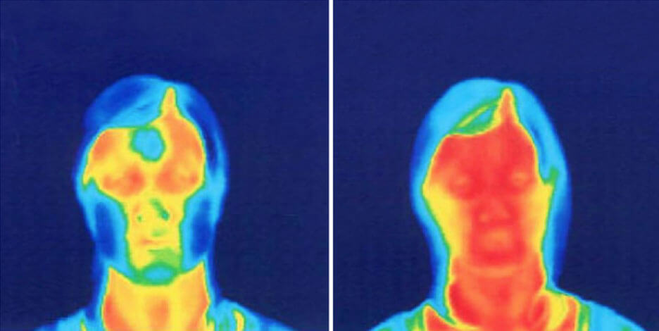 Face Yoga Method Thermographic image.