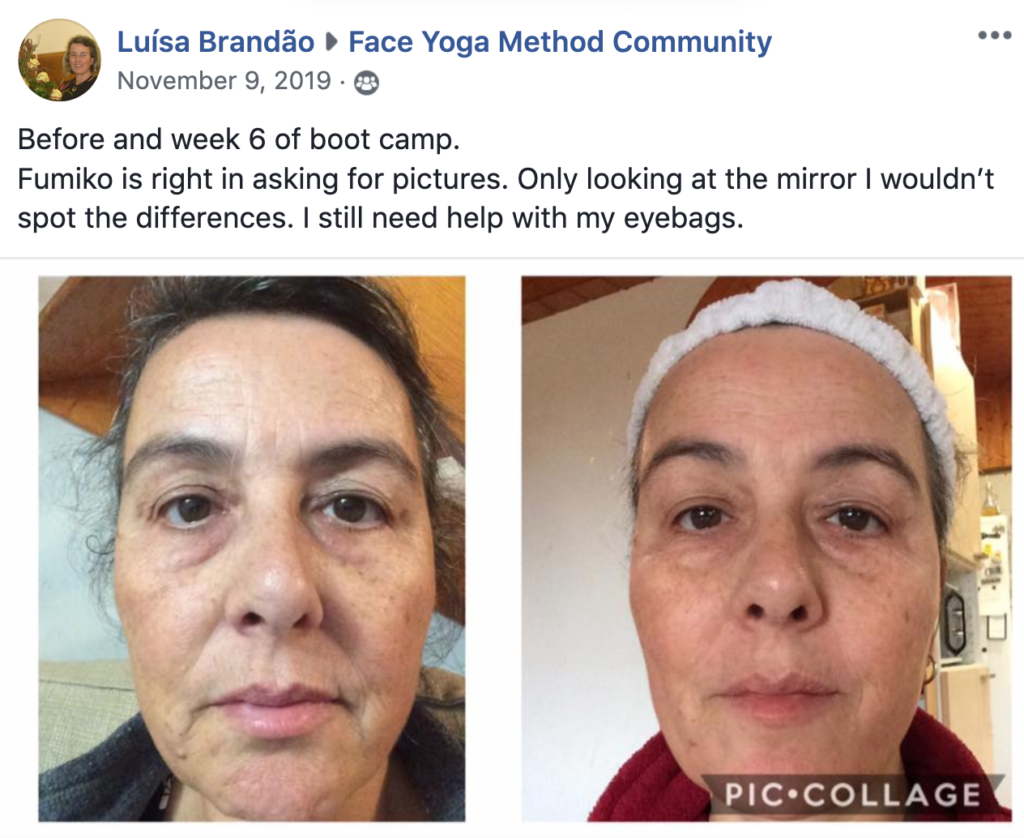 Before and after photos of a woman practicing face yoga. Looking straight at the camera.