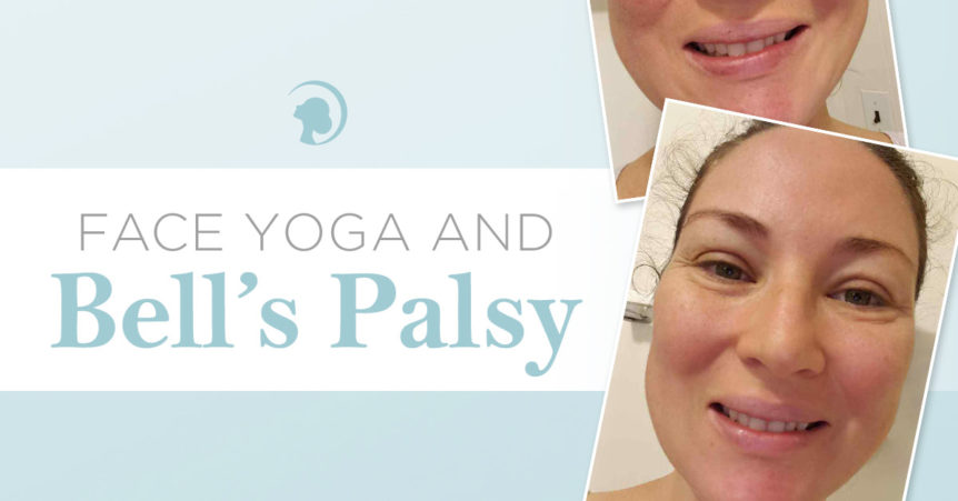 Bell's palsy patient's progress with Face Yoga.