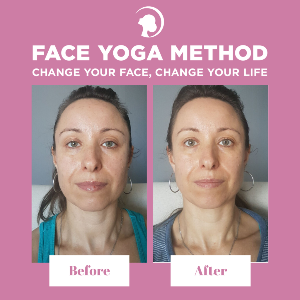 Before and after of a Face Yoga practitioner - progress with facial exercises.